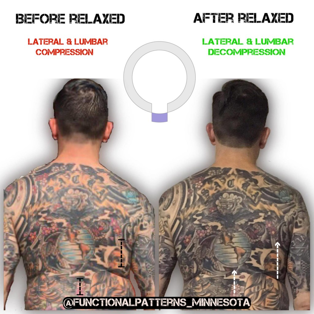 Before/After Posture - Functional Patterns Seattle